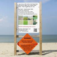 A warning sign for algal toxins is posted in 2015 on a beach in Maumee Bay State Park, located on Lake Erie in Oregon, Ohio. | AP