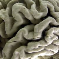 Lancet report gives advice on possible ways to delay onset of dementia