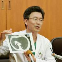 In a first, Okayama hospital combines healthy parts of donor's lungs to make one for transplant