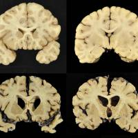 Degenerative brain damage found in 110 of 111 deceased NFL players: study