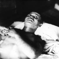 A 21-year-old soldier exposed within 1 km of the hypocenter, with subcutaneous hemorrhage spots. He died less than a month after the bombing. | HIROSHIMA PEACE MEMORIAL MUSEUM