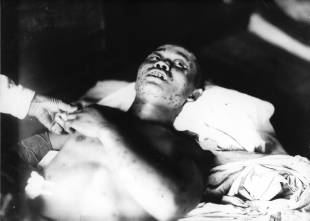 A 21-year-old soldier exposed within 1 km of the hypocenter, with subcutaneous hemorrhage spots. He died less than a month after the bombing.
