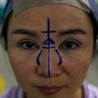 Chen Yan, 35, poses for a photograph before her plastic surgery procedure at Huamei Medical Cosmetology Hospital in Shanghai on Aug. 22. | AFP-JIJI
