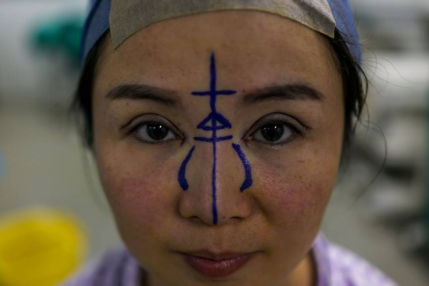 Going under the knife: China's plastic surgery stampede