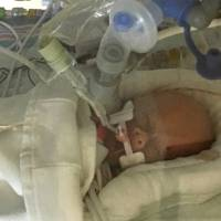 Premature baby whose mom chose giving birth over chemo has died