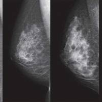 These mammograms show breasts with differing densities, (from left) ranging from an extreme fatty breast, one with scattered areas of density, a heterogeneously dense type and an extremely dense type. | NPO BREAST CANCER IMAGING NETWORK