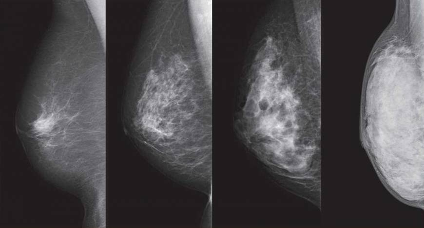 Cancer and breast density: What are doctors withholding?
