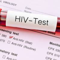 Japan to offer free HIV testing in annual company health checks to encourage early detection