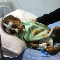 A malnourished Yemeni child receives treatment at a hospital in the Yemeni port city of Hodeidah Tuesday. The United Nations has warned that war-wracked Yemen faces a mass famine unless aid deliveries are allowed to enter the impoverished country. | AFP-JIJI