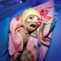 Sixty-day-old Nadia Ahmad Sabri, who suffers from severe malnutrition, lies in bed at a malnutrition treatment center in the Red Sea port city of Hodeida, Yemen, Wednesday. | REUTERS