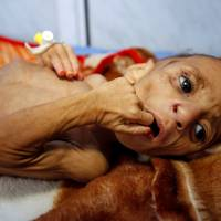 Fatima Abdullah Hassan, 1, who suffers from severe malnutrition, lies in bed at a malnutrition treatment center in the Red Sea port city of Hodeida, Yemen, Wednesday. | REUTERS