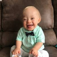 First baby with Down syndrome is Gerber's 'Spokesbaby' of the year