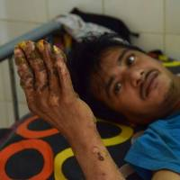 After 24 surgeries, 'tree man' relapses in Bangladesh