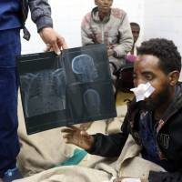 A Libyan medical orderly hands over an X-ray to a bandaged African migrant who was injured after their vehicle overturned during a truck collision, in a hospital room in the town of Beni Walid, 170 km southeast of the capital Tripoli, on Wednesday. | AFP-JIJI