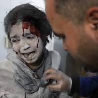 A Syrian girl receives treatment as victims of reported regime airstrikes on Hamouria, Saqba and Kafr Batna are brought to a makeshift hospital in the rebel-held enclave of eastern Ghouta on Wednesday. | AFP-JIJI