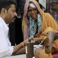 A doctor cleans the wound of a woman farmer at the end of her six-day march on foot, in Mumbai Monday.   AP