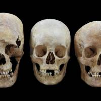 Strong, intermediate and nondeformed skulls (from left) from the early medieval Altenerding and Straubing sites in Bavaria, Germany, are displayed. | STATE COLLECTION FOR ANTHROPOLOGY AND PALAEOANATOMY MUNICH / VIA AP