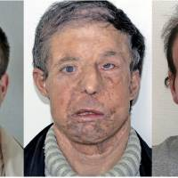 '20 years younger': Frenchman gets second face transplant