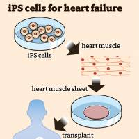 Japan OKs first clinical study of iPS cell-based heart treatment