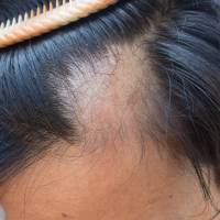 Tokyo-backed institute and medicine firm developing alternative method to regrow hair