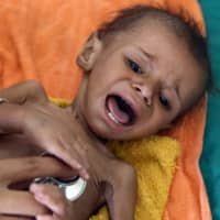 Over 80,000 Yemeni children may have died from hunger, aid group says