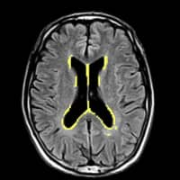 Possible brain abnormalities detected by an AI-driven image analyzer are marked in yellow in this MRI scan. | LPIXEL / VIA KYODO