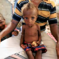 Hanaa Ahmad Ali Bahr, a malnourished girl, sits on her father's lap in a shanty town in Hodeidah, Yemen Monday. | REUTERS