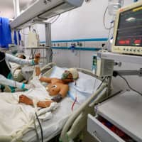 A Yemeni boy lies in a hospital as he receives treatment in the Houthi-rebel-held capital Sanaa on Monday for wounds sustained during a reported airstrike in the Kisar district of the northern Hajjah province. | AFP-JIJI