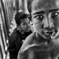 Street child with a razor blade in his mouth for protection in Dhaka, Bangladesh. | YOSHI SHIMIZU
