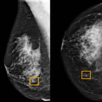 A yellow box indicates where an artificial intelligence (AI) system found cancer hiding inside breast tissue, in an undated photo released by Northwestern University in Chicago Wednesday. | NORTHWESTERN UNIVERSITY / HANDOUT / VIA REUTERS