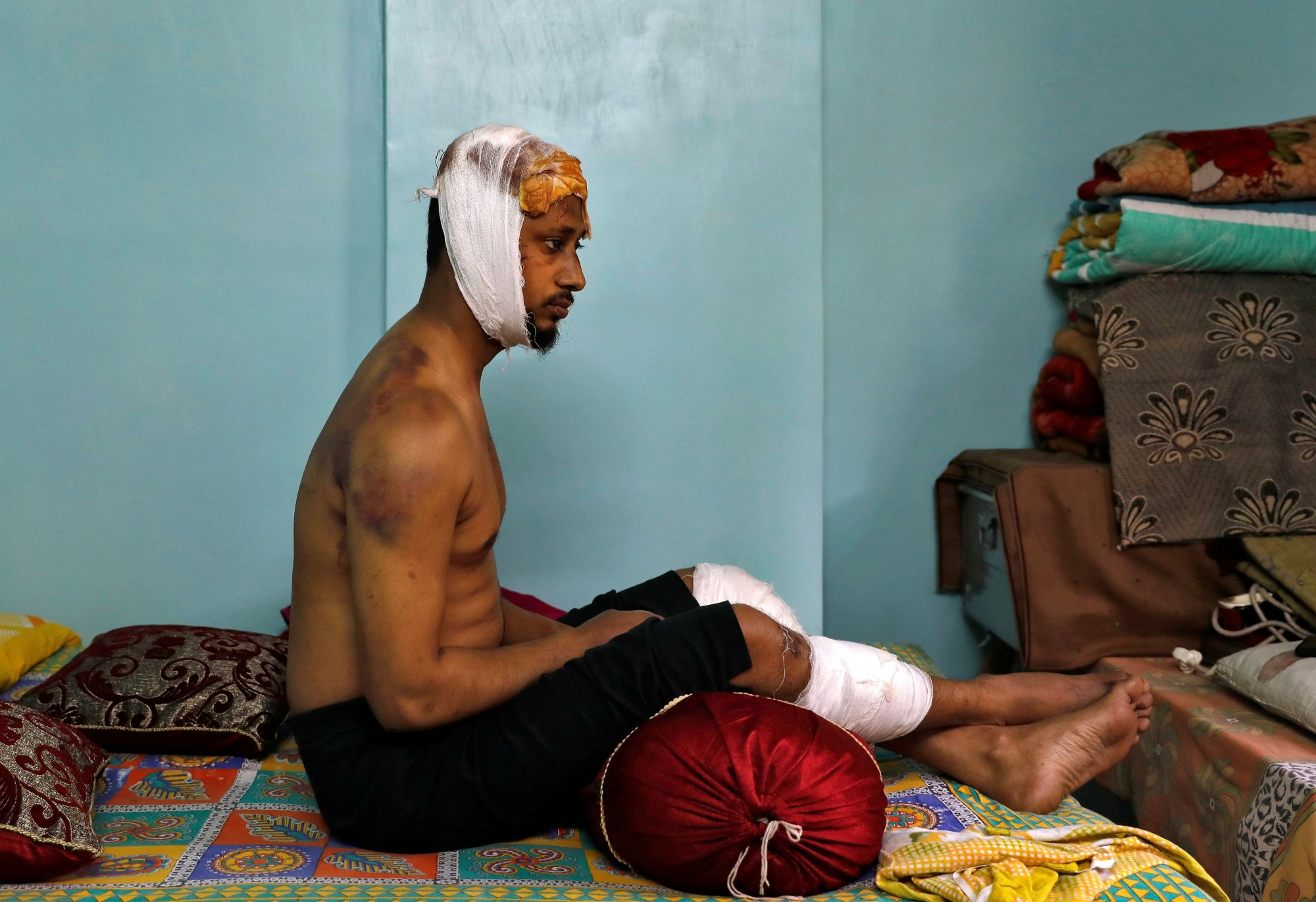 Mohammad Zubair, 37, who is Muslim and was injured after being beaten by a group of men chanting pro-Hindu slogans during protests sparked by a new citizenship law, shows his bruises inside his relative's house in New Delhi Wednesday. | REUTERS