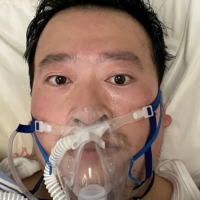 Chinese doctor Li Wenliang, who had sounded the alarm about a strange new viral outbreak, is treated at the Wuhan Central Hospital in February. Li's death was confirmed on Feb. 7.   LI WENLIANG / SOCIAL MEDIA / VIA AFP-JIJI