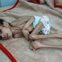 Faid Samim, 7, a malnourished boy who also has cerebral palsy, lies on a bed at the malnutrition treatment ward of al-Sabeen hospital in Sanaa, Yemen, on Dec. 28.  | REUTERS