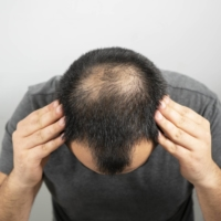 Japanese scientists have identified stem cells vital for hair regeneration, aiming to launch clinical research to apply those cells to therapy for male-pattern baldness.