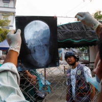 An X-ray of the head of Shel Ye Win, who was shot in the face with a live round during a crackdown by security forces on demonstrations by protesters against the military coup, is shown in Mandalay, Myanmar, on Sunday. | AFP-JIJI