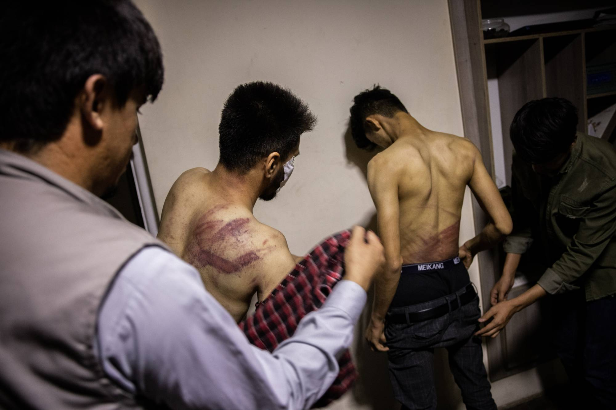 Two Afghan journalists who said they were beaten by members of the Taliban because they were covering a protest in Kabul | JIM HUYLEBROEK/THE NEW YORK TIMES